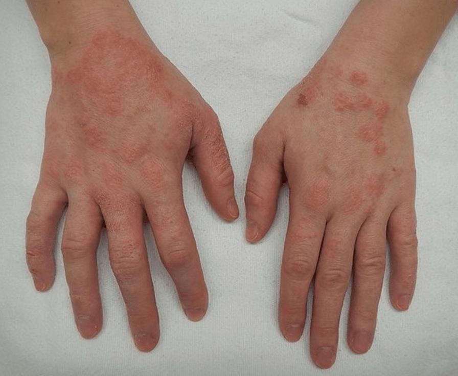 Exemple de dermite pouvant apparaître avec les multiples lavages